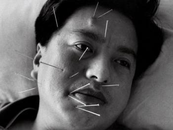 中国针灸01