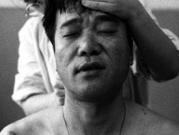中国针灸08