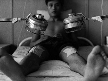 中国针灸07