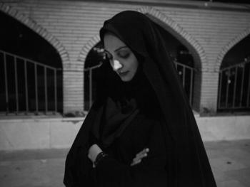 伊朗做整形手术的年轻人12
