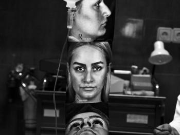 伊朗做整形手术的年轻人03